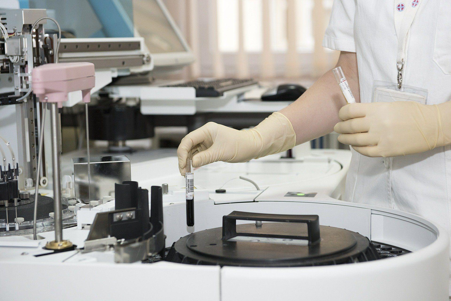 Ein Laborant hält zwei Reagenzgläser in der Hand.